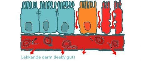 darmwand lekkende darm / leaky gut